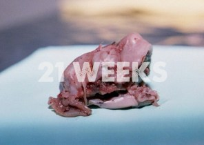 Prenatal Development 21 Weeks