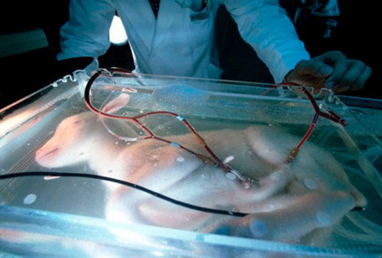 Artificial Womb
