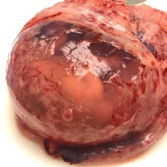 Amniotic Sac [12 Weeks Miscarriage]