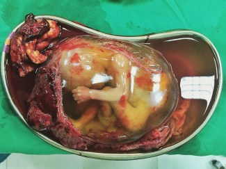 Amniotic Sac [19 Weeks Ectopic]