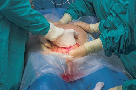 Cesarean Section Surgery