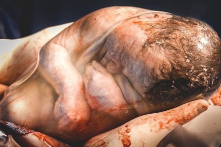 Baby in Amniotic Sac