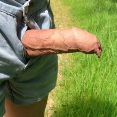 Can anyone explain the differenced between your inner and outer foreskin? After a man has been circumcised would be left with either? PLEASE LEAVE A REPLY BELOW