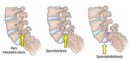 The progress of isthmic spondylolisthesis