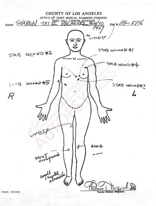 Sharon Tate autopsy report