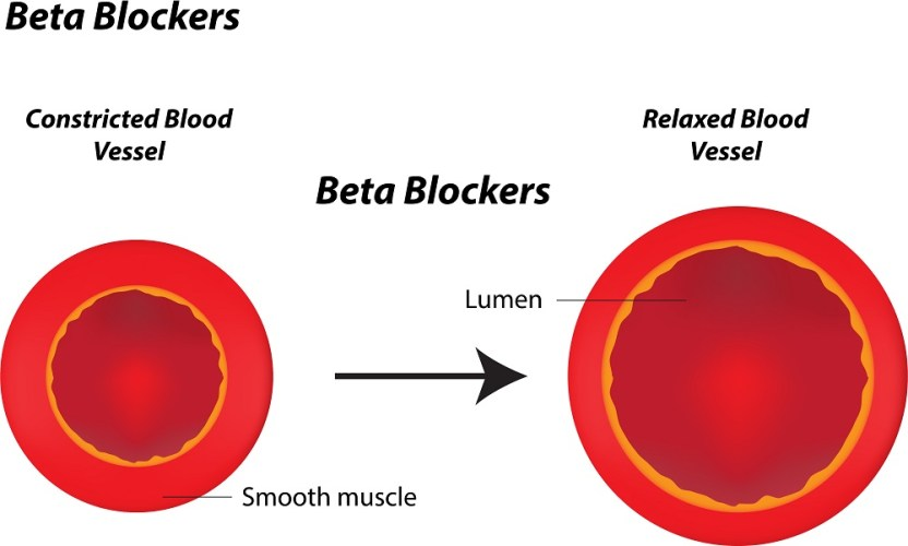 Beta Blockers for anxiety