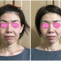 小顔矯正、small face correction