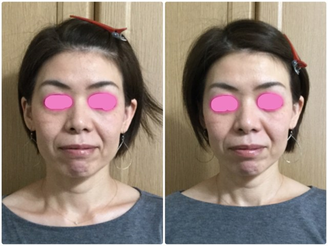 小顔矯正、small face correction