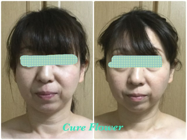 小顔矯正, small face correction