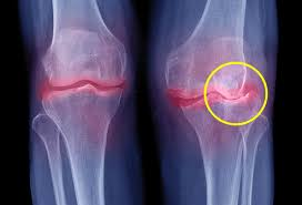 Why Are My Joints So Stiff? What Can I Do?