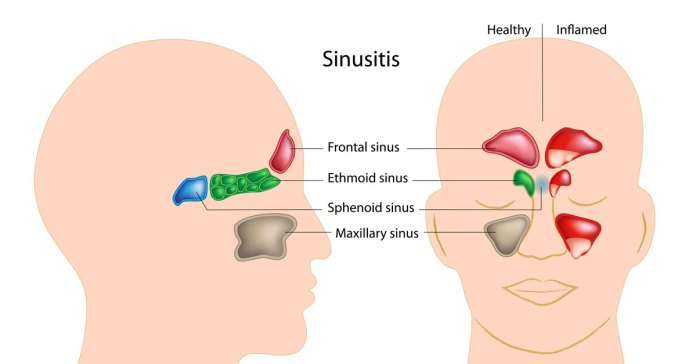 What Are Best And Worst Foods For Sinus Congestion?