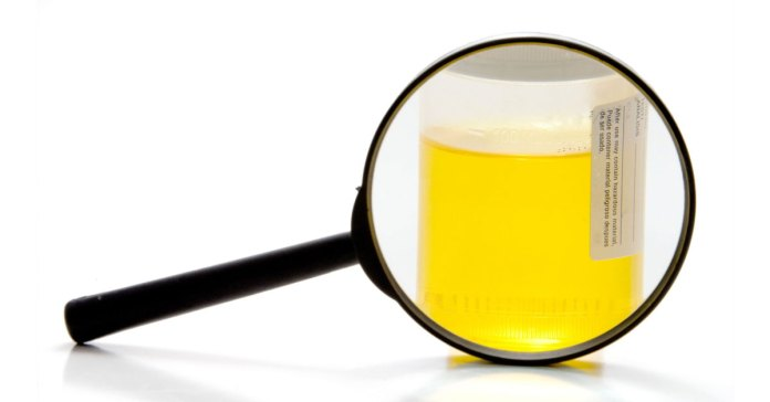 What does the colour of your urine reveal about you?