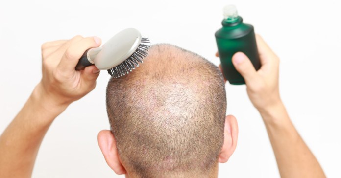 How to Regrow Lost Hair