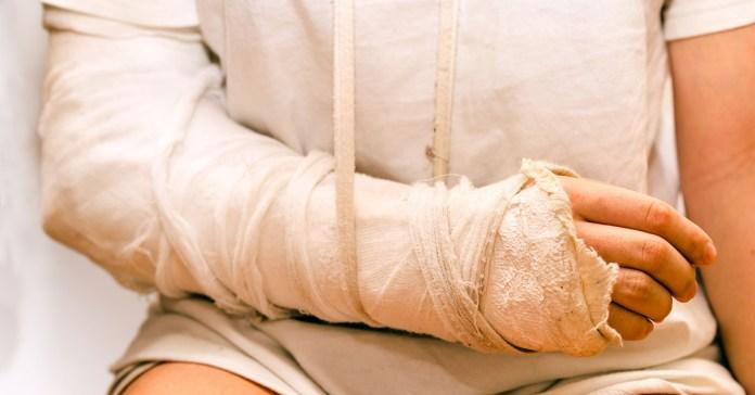 How to Heal Broken Bones Fast Naturally?