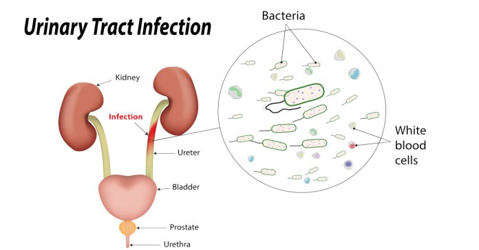 How to Naturally Heal Urinary Tract Infection?