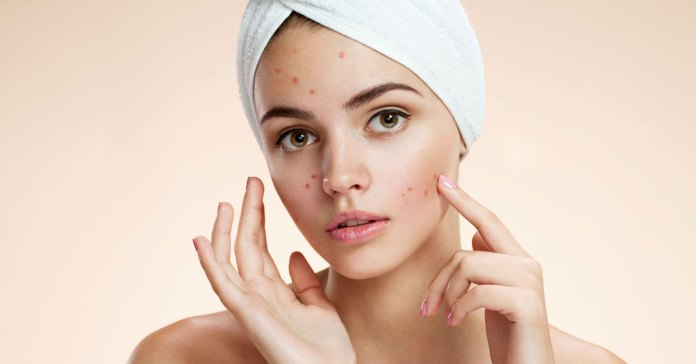 Skin Issues - A Reflection Of Imbalances Inside Your Body