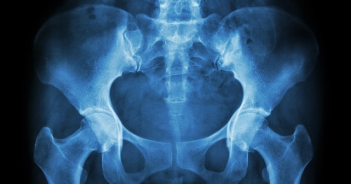 What is Pelvic Floor Dysfunction?