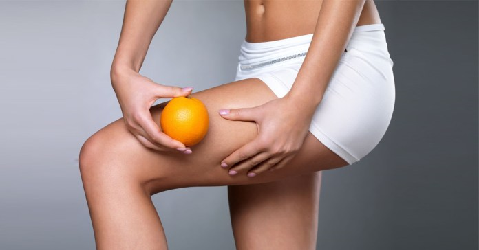 How is Cellulite Different From Fat?
