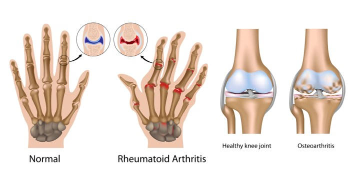 2_Living with Joint Pains and Arthritis