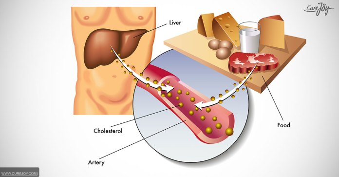 For_A_Healthy_Heart_Just_Lowering_LDL_Cholesterol_Is_Not_Enough