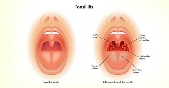 Herbal Remedies for Tonsilitis