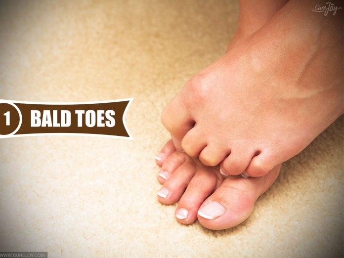 1-Bald-Toes