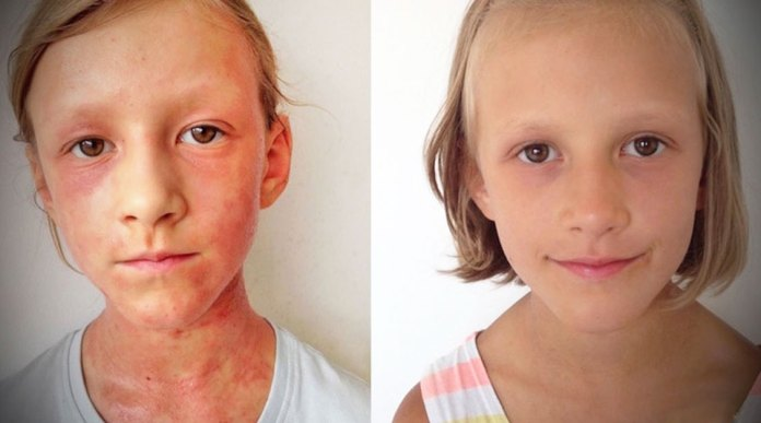 a-polish-mother-made-a-diet-to-cure-her-kids-eczema-and-make-her-family-healthier
