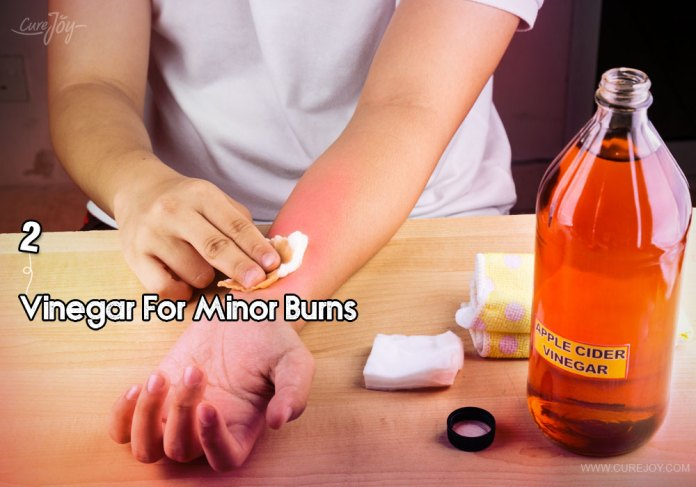 2-vinegar-for-minor-burns