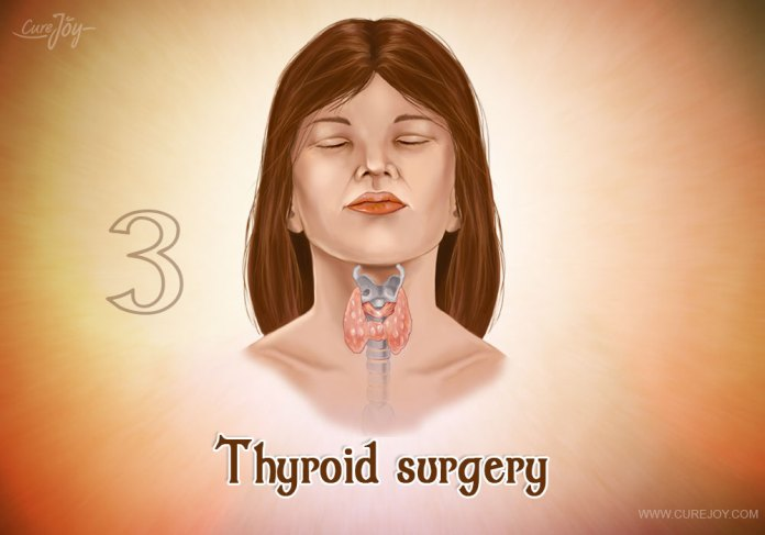 3-thyroid-surgery
