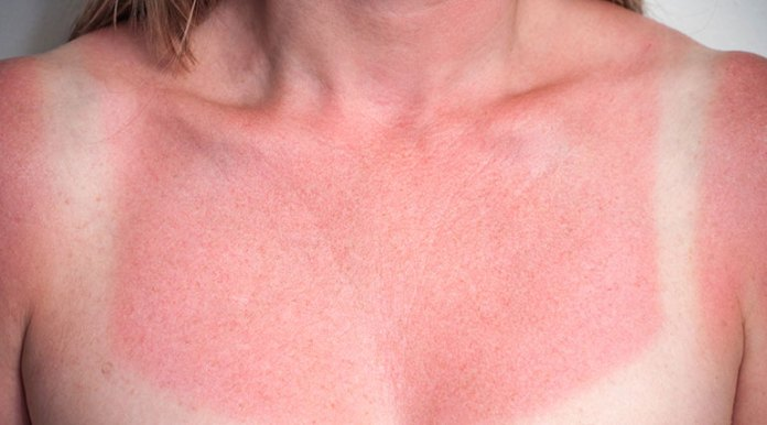 sun-damage