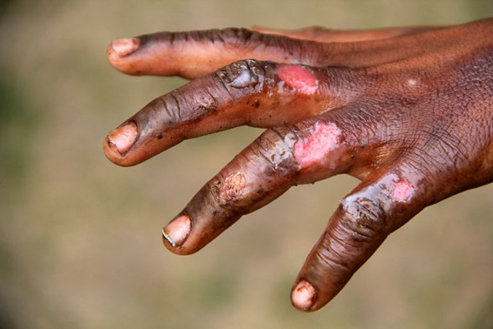 Burned hands: First Aid: What Everybody Needs To Know