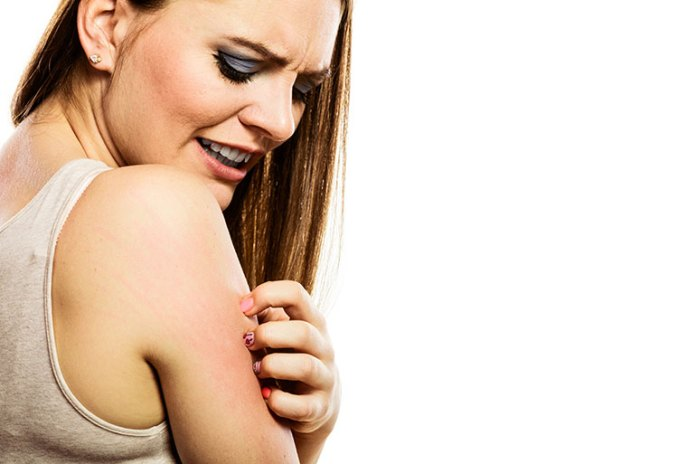 Itching: 9 Symptoms Of An Oyster Allergy
