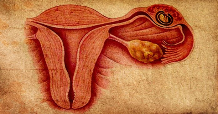 causes and symptoms of an ectopic pregnancy