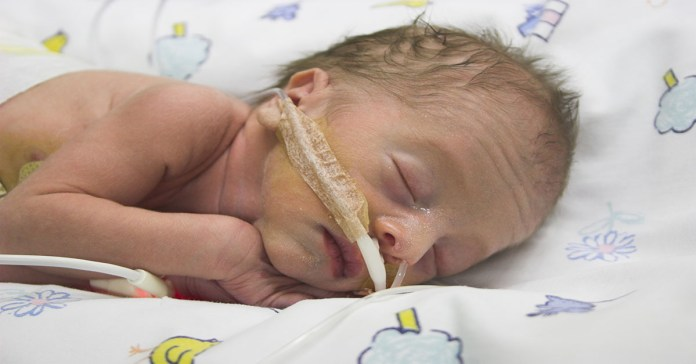 Taking care of premature baby: 7 Ways To Take Care Of Your Premature Baby At Home