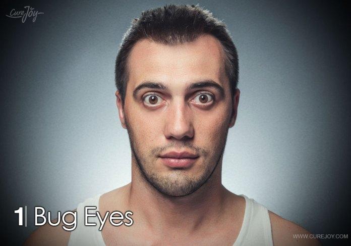 1-bug-eyes