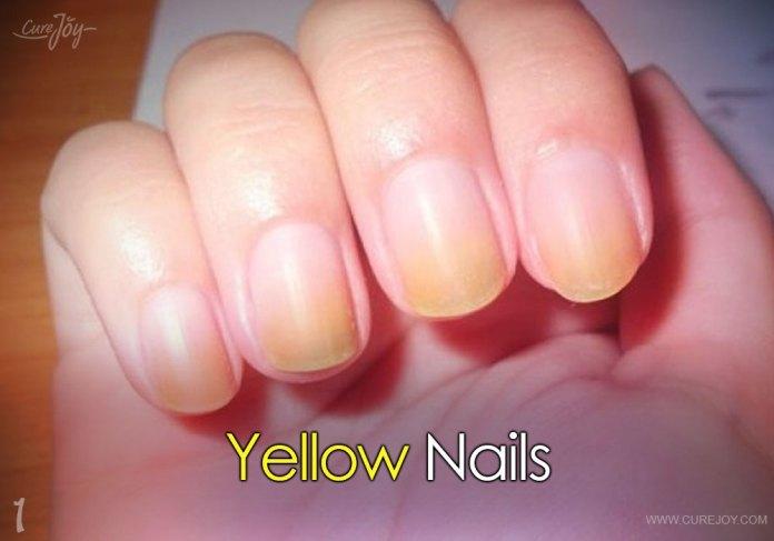 1-yellow-nails