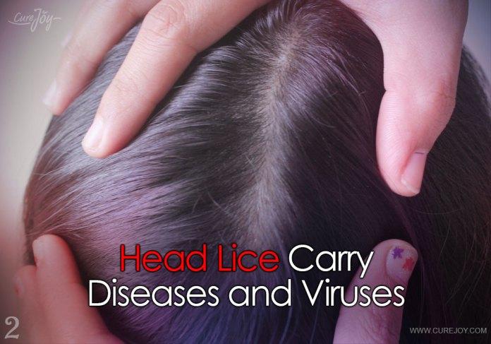 2-head-lice-carry