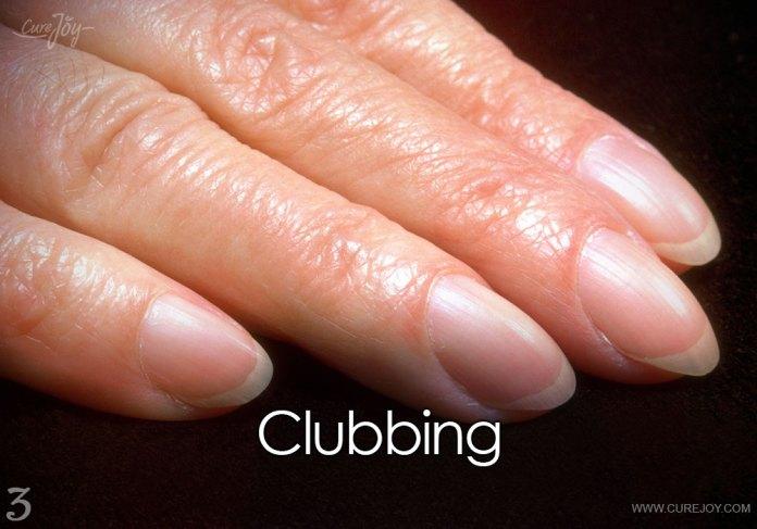 3-clubbing