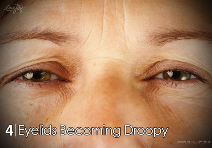 4-eyelids-becoming-droopy