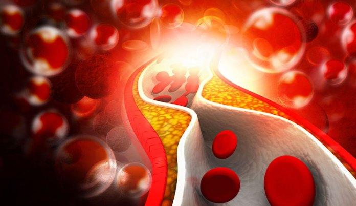 Cactus Juice Fights Cholesterol