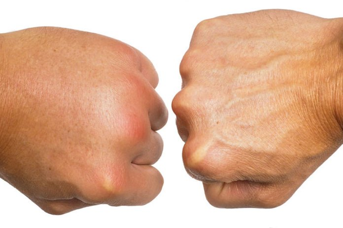 Lymphedema causes swelling of the limbs including your fingers