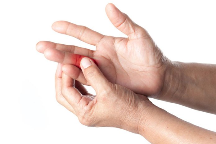 Severe injury that causes tissue damage may result in swollen fingers.