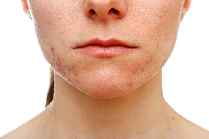 Lower Cheek Acne Signifies Mouth Problems