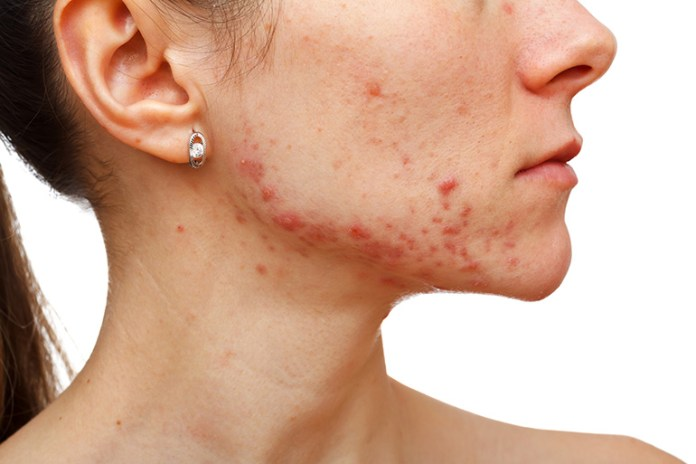 Jawline Acne Signifies Digestive Issues