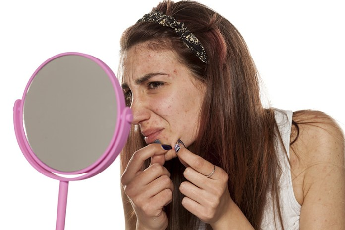 Chin Acne Means Hormonal Imbalance