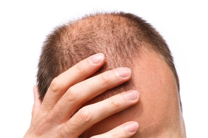 Difference Between Male And Female Pattern Hair Loss