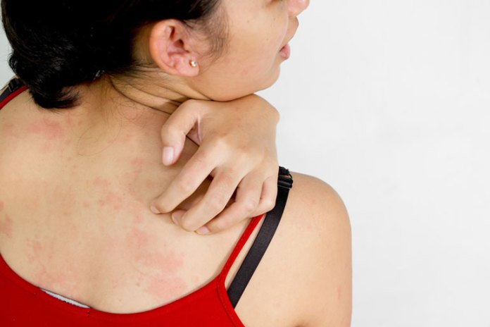 Skin Symptoms