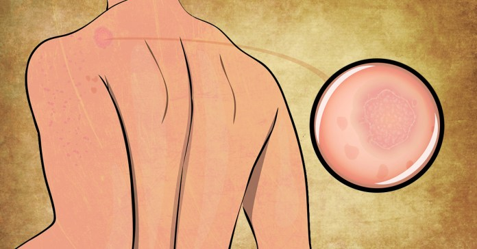 Home Remedies To Treat Pityriasis Rosea Naturally