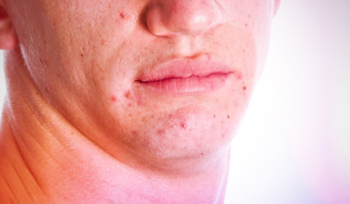 Acne can be extremely uncomfortable.