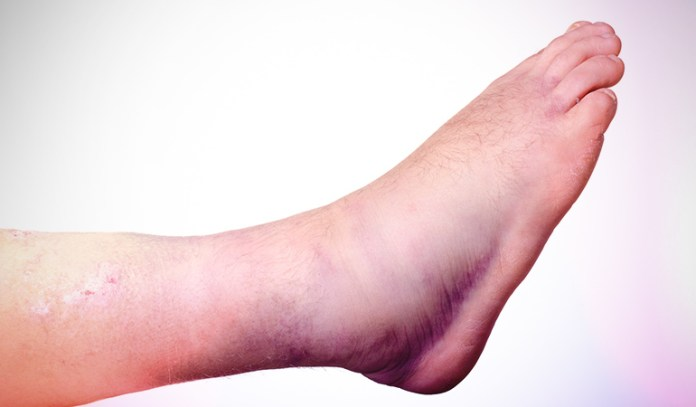 Switching the terrain causes stress fracture